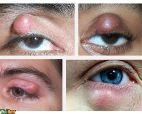 Get Rid of the Lumps in the Eyelid - VisiHow