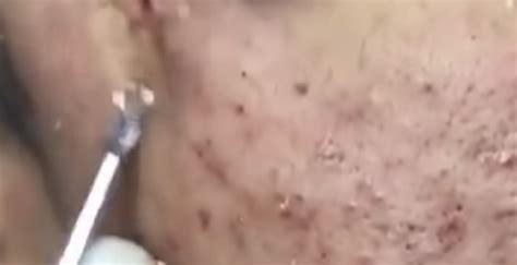 Big Cystic Acne Blackheads Extraction Whiteheads Removal