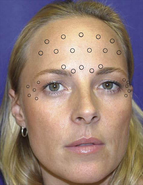 Long-Term Effects of Botulinum Toxin Type A (Botox) on