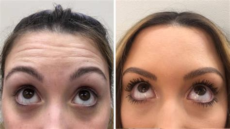 I Got Botox Injections at 22—Here's Why I Don't Regret It